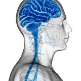 Plasticità del cervello nel recupero post ictus