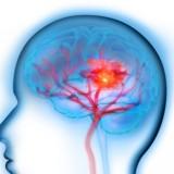L'ictus occipitale: dove è localizzato?